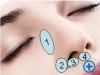 做隆鼻,医生为什么建议垫鼻基底?填充鼻基底用什么材料?