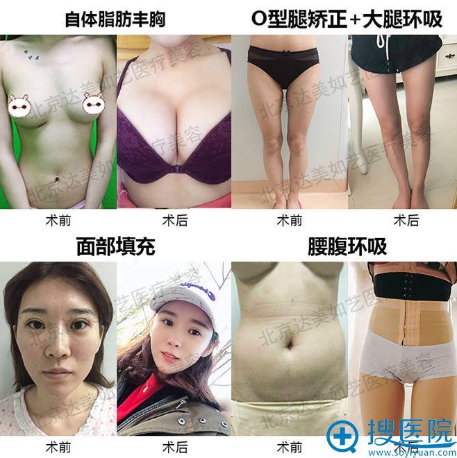 北京达美如艺吸脂和脂肪填充隆胸案例