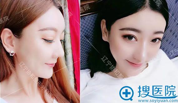 辽宁协和于世川驼峰鼻矫正案例