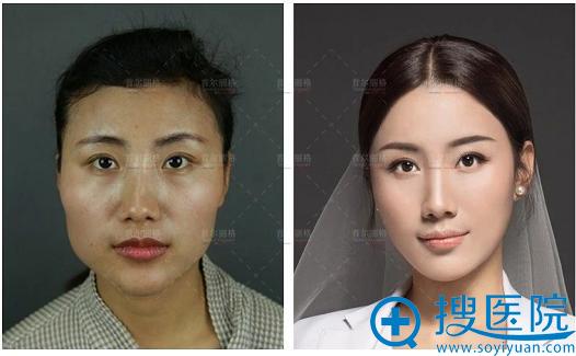 上海首尔丽格颧骨下颌角整形案例对比图