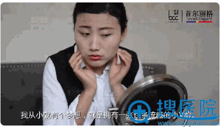 上海首尔丽格颌面整形案例模特