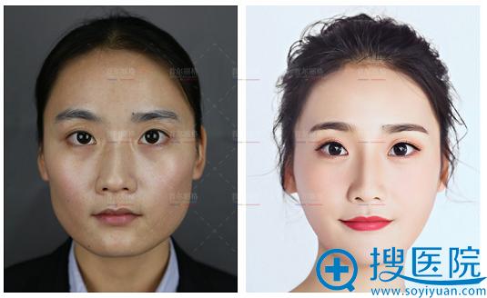 上海首尔丽格颌面整形案例