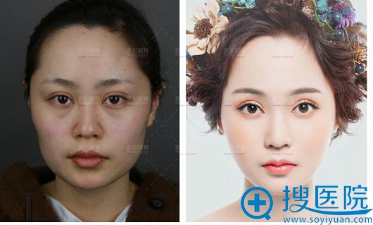 上海首尔丽格颧骨下颌角整形案例
