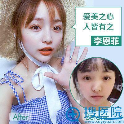 重庆华美李任医生做的耳软骨复合隆鼻案例