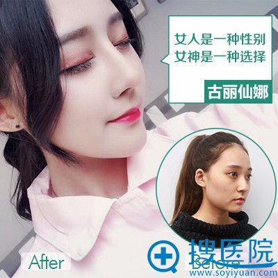 重庆华美蒋琳医生做的膨体隆鼻案例