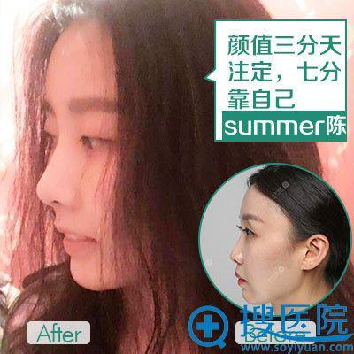 重庆华美张国强做的线雕隆鼻案例