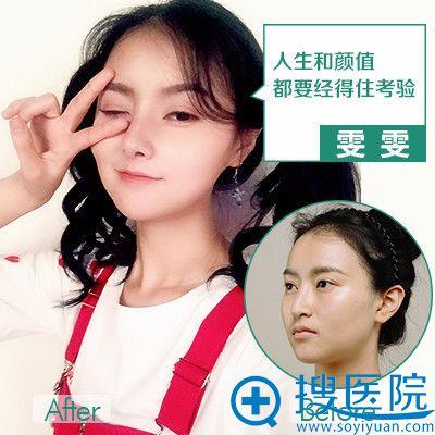 重庆华美张国强医生做的隆鼻失败修复案例