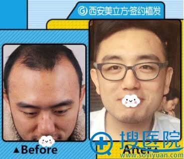 西安美立方植发真人案例效果对比
