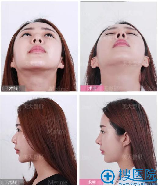 王大太院长做的全仿生综合隆鼻手术案例