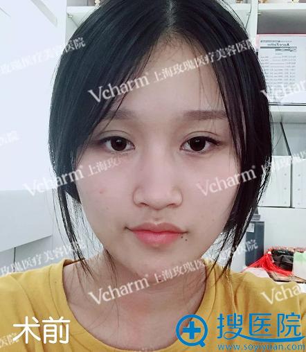 在上海玫瑰做隆鼻修复手术前