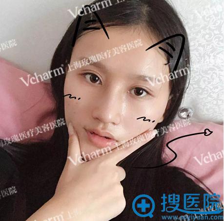 上海玫瑰整形医院隆鼻失败修复案例