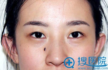 做手术前的单眼皮照片