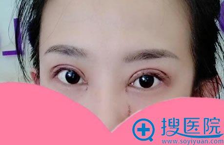 做完双眼皮手术当天照片