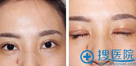 全切双眼皮后6天疤痕恢复情况