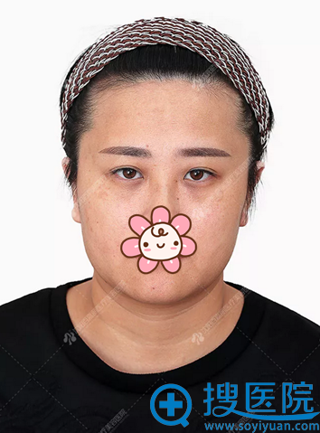 注射玻尿酸前脸部松弛泪沟法令纹明显