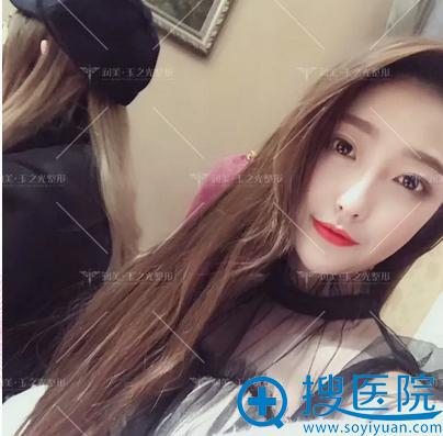 刘中国教授做的全脸自体脂肪面部填充案例