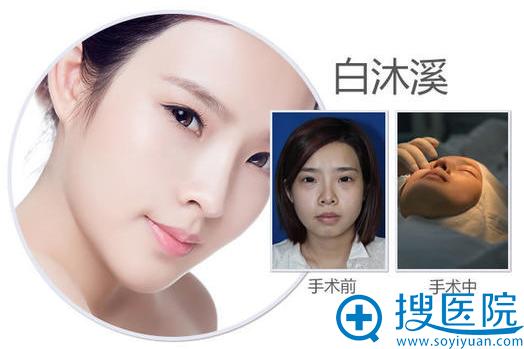 南宁美丽焦点焦俊光做的鼻综合隆鼻案例图