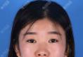 长春艾尔丽赵广文硅胶隆鼻+短鼻延长鼻头缩小综合鼻整形术后照