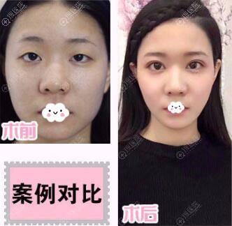 岳阳湘潭春天双眼皮真人案例效果对比图