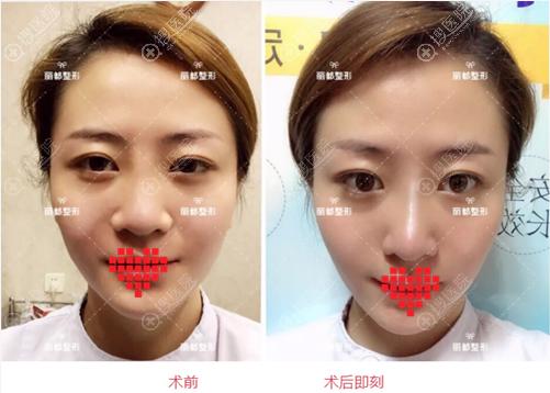 太原丽都线雕隆鼻术前术后素颜对比照
