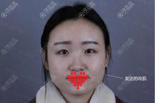在宁波珈禾打完瘦脸针1个月后我又做了面部线雕 果然变成了小脸