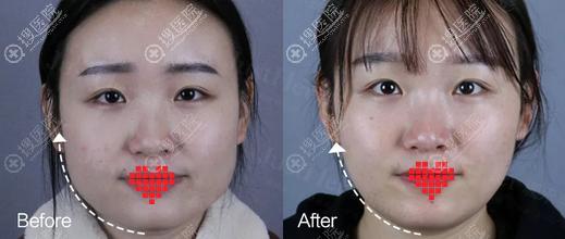 宁波珈禾瘦脸针术后一个对比照片