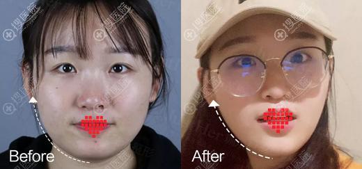 瘦脸针+面部线雕术后效果对比