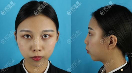 衡阳鼻整形哪个医院好?衡阳雅韩整形医院许小检肋软骨隆鼻案例