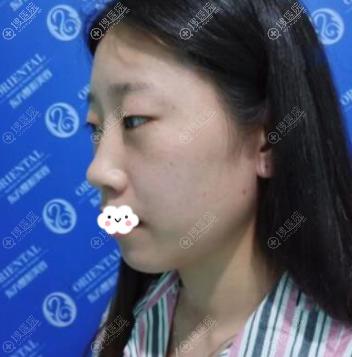 福州东方整形陈龙福切开双眼皮+隆鼻+祛眼袋真人案例