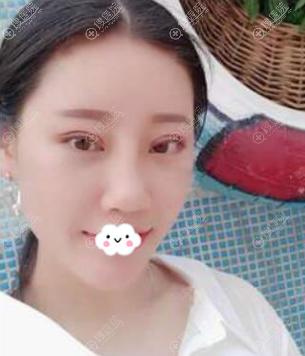 福州东方整形陈龙福切开双眼皮+隆鼻+祛眼袋术后恢复效果