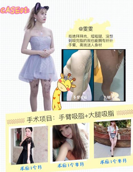上海翡立思唐为东做的吸脂案例