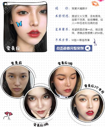 上海翡立思唐为东医生做的M唇手术 +厚唇改薄案例