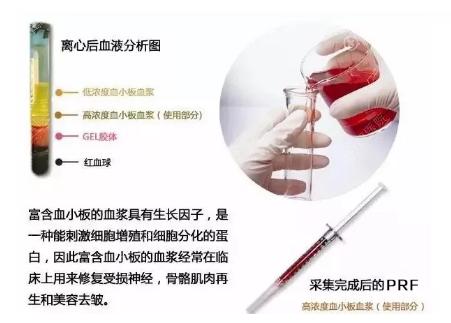 血液离心处理后收集PRF活体干细胞
