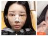 看了重庆当代和星辰的案例后找重庆华美杨丽萍做的双眼皮隆鼻