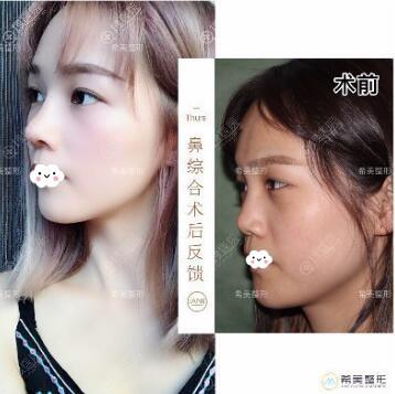 株州希美蒋松林鼻综合隆鼻真人案例
