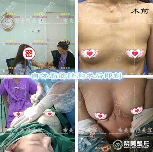 株洲希美自体脂肪隆胸真人案例手术过程对比图