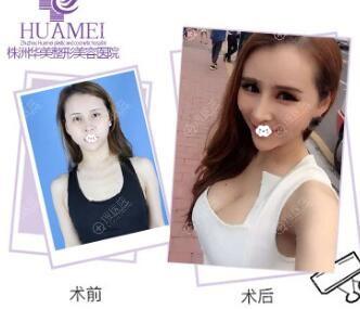 株洲华美高湘龙假体隆胸整形真人案例