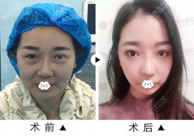 四川华美紫馨隆鼻失败修复前后效果对比