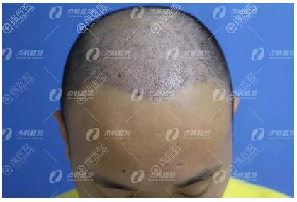 在南宁贞韩植发做完头发种植一周效果图