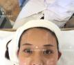 记录我在杭州格莱美整形医院放弃线雕做美版超声刀的亲身经历