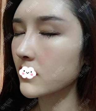 广州韩妃刘志刚鼻子做的怎么样?真人案例效果图