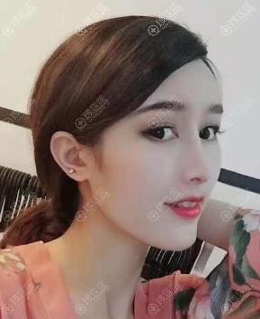 广州鼻修复哪家好?广州韩妃刘志刚鼻综合隆鼻案例