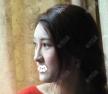 专程飞去广州韩妃找刘志刚做鼻子硅胶假体取出后隆鼻综合整形