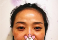 在成都星美宝岛作为面部埋线提升的她,前后差别令人惊掉下巴