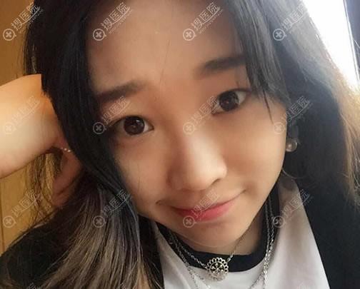 在北京亚楠悦容做过双眼皮,现毫不犹豫选择蒋亚楠做全肋鼻综合