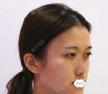 打听东莞君熠刘伟杰修复手术做的好,找他做鼻综合隆鼻整形案例