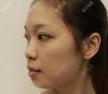 公开我在苏州康美做面部线雕提升的经历以及一周后的对比照片