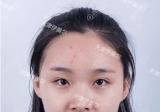 看了天津伊美尔于广洋杨文国的案例后找卫星主任做了双眼皮隆鼻