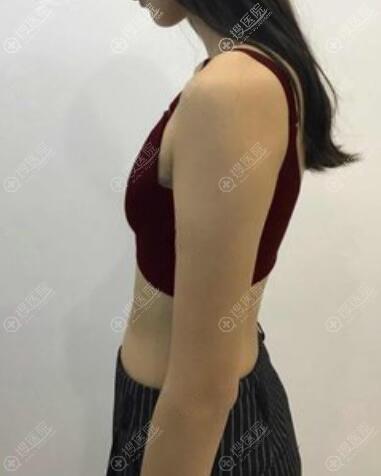 惠州刘伟勇医疗美容找刘晓韬做自体脂肪隆胸案例