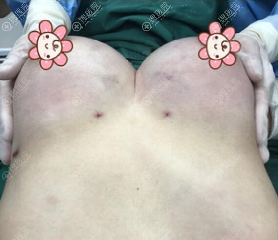 在惠州刘伟勇医疗美容找刘晓韬做自体脂肪隆胸术后效果